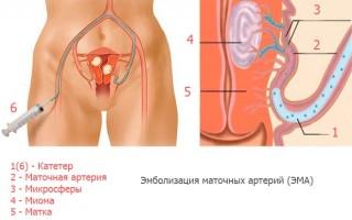 Эмболизация маточных артерий (ЭМА) при миоме матки