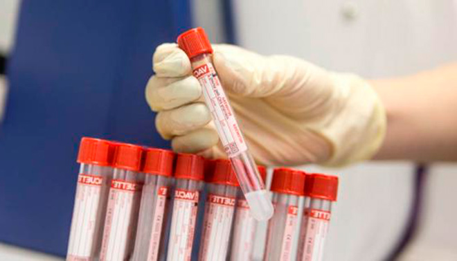 Перед тем как начать лечение миомы боровой маткой необходимо обследоваться и сдать анализы