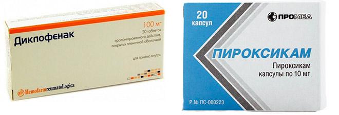 противовоспалительные препараты (НПВС)