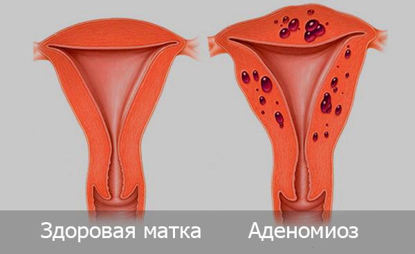 Аденомиоз или внутренний эндометриоз возникает в том случае, когда во внутренней слизистой оболочке матке (эндометрии) начинаются функциональные изменения