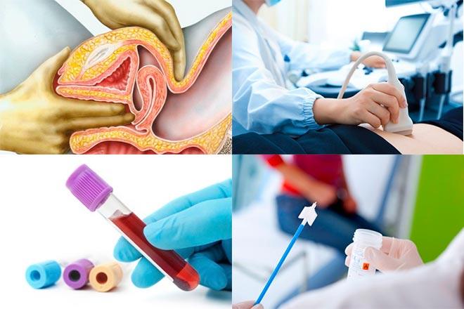 Диагностика узловой миомы матки