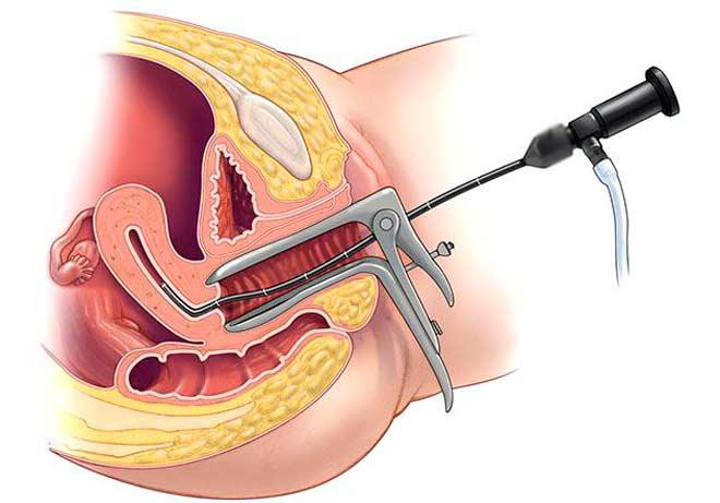 Гистероскопия (диагностика)